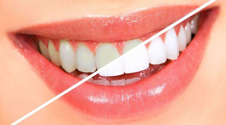 tandblekningen