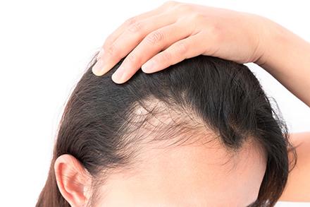 bästa medel mot håravfall
