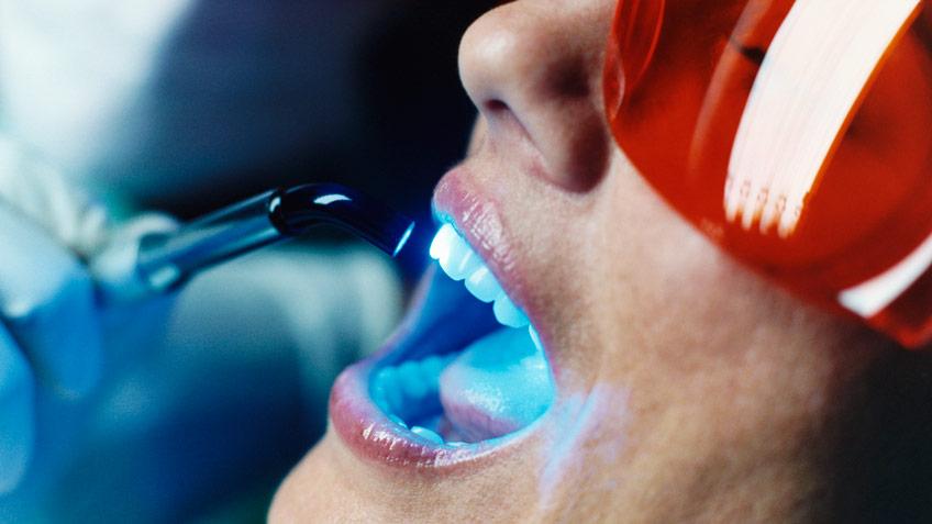 hur länge håller en tandblekning